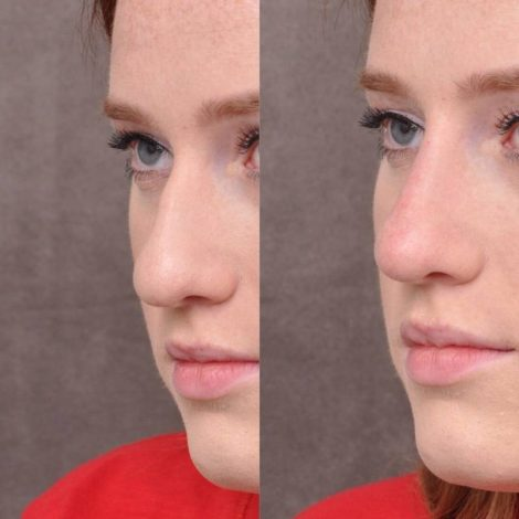 Non surgical rhinoplasty - Left Side