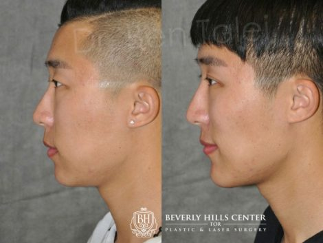 Chin Implant and Buccal Fat Reduction - Left Side