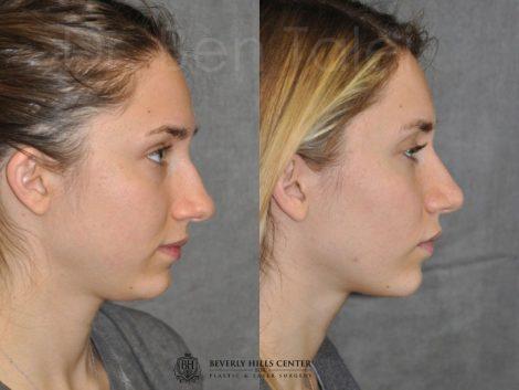 Minimally Invasive Rhinoplasty & Nostril Lightening - Right Side