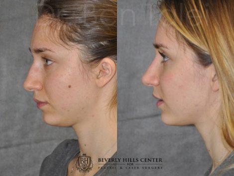 Minimally Invasive Rhinoplasty & Nostril Lightening - Left Side