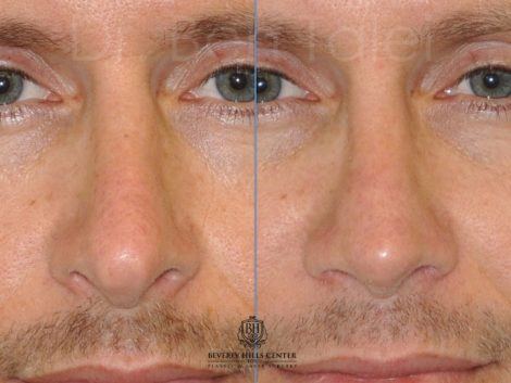 Natural Revision Rhinoplasty - Front