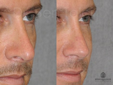 Natural Revision Rhinoplasty - Right Side