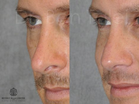 Natural Revision Rhinoplasty - Left Side