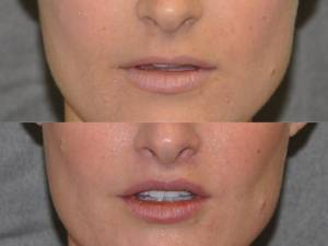 Patient Before and After Lip Lift