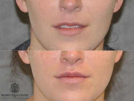 Modified Upper Lip Lift to change lip character - Front