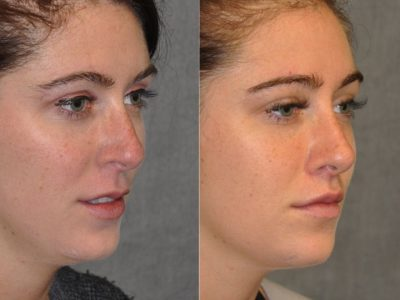 Modified Upper Lip Lift to change lip character - Right Side