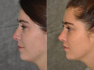 Modified Upper Lip Lift to change lip character - Left Side