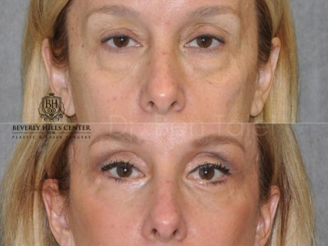 Upper & Lower Eyelid Lift with Fat Repositioning - Front