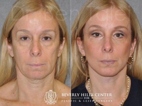 AuraLyft and Eyelid Rejuvenation - Front