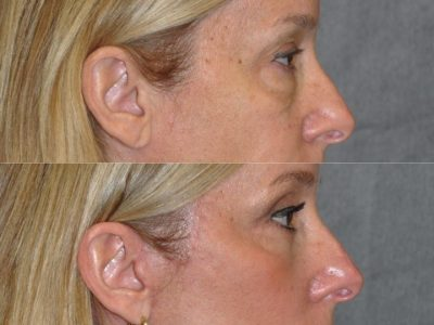 Upper & Lower Eyelid Lift with Fat Repositioning - Right Side