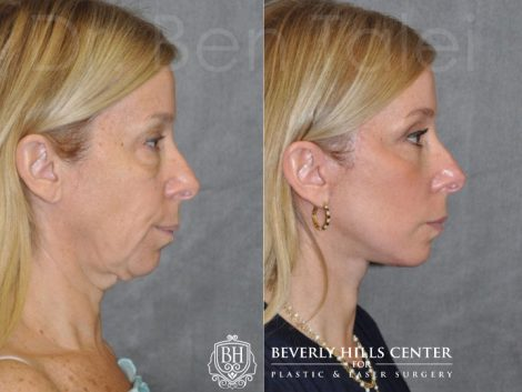AuraLyft and Eyelid Rejuvenation - Right Side