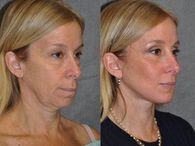 AuraLyft and Eyelid Rejuvenation - Right Side