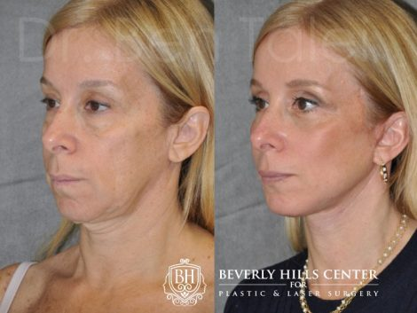 AuraLyft and Eyelid Rejuvenation - Left Side
