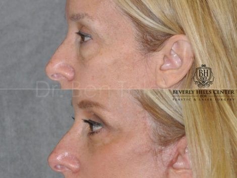 Upper & Lower Eyelid Lift with Fat Repositioning - Left Side