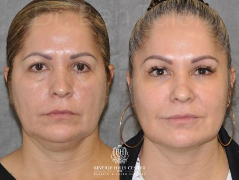 Liquid Facelift using Botox and Fillers - Front