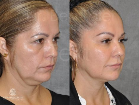 Liquid Facelift using Botox and Fillers - Right Side