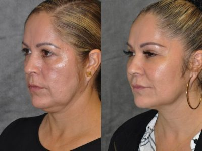 Liquid Facelift using Botox and Fillers - Left Side