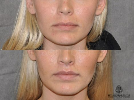 Modified Upper Lip Lift for balance - Front