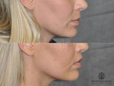 Modified Upper Lip Lift for balance - Right Side