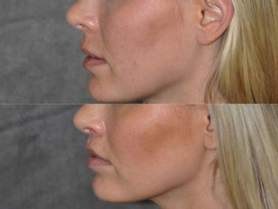Modified Upper Lip Lift for balance - Left Side
