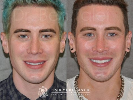 Modified Upper Lip Lift for Men – Front