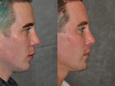 Modified Upper Lip Lift for Men – Right Side