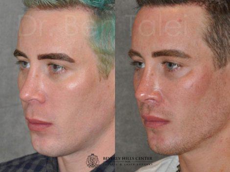 Modified Upper Lip Lift for Men – Left Side