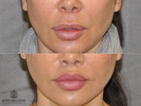 Modified Upper Lip Lift to Correct Over-Filling - Front