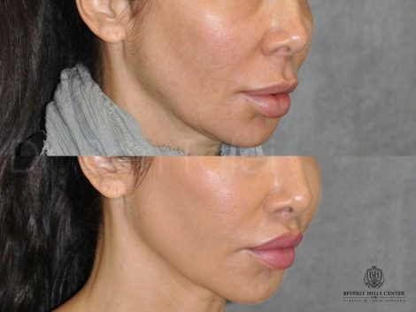 Modified Upper Lip Lift to Correct Over-Filling - Right Side