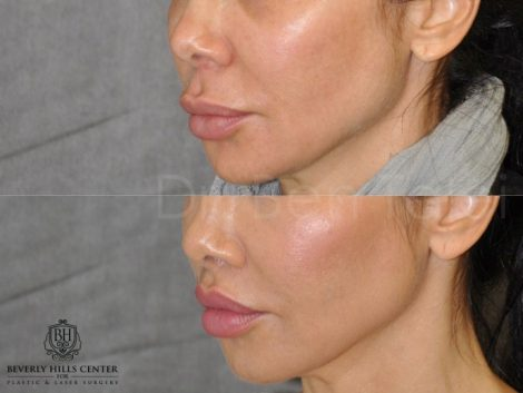 Modified Upper Lip Lift to Correct Over-Filling - Left Side