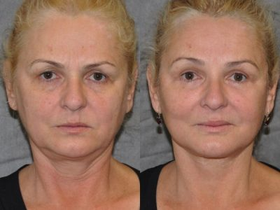 AuraLyft, BrowLift, Eyelid Rejuvenation, Lip Augmenation - Front