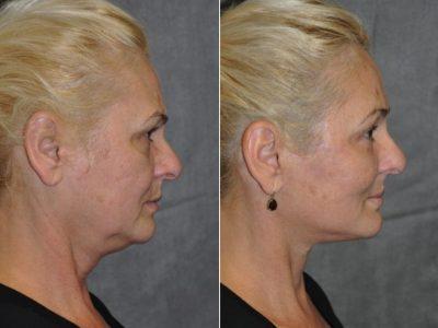 AuraLyft, BrowLift, Eyelid Rejuvenation, Lip Augmenation – Right Side