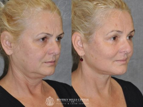 AuraLyft, BrowLift, Eyelid Rejuvenation, Lip Augmenation – Right Side