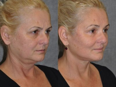 AuraLyft, BrowLift, Eyelid Rejuvenation, Lip Augmenation - Right Side
