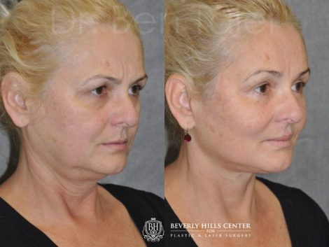 AuraLyft, BrowLift, Eyelid Rejuvenation, Lip Augmenation - Right Side