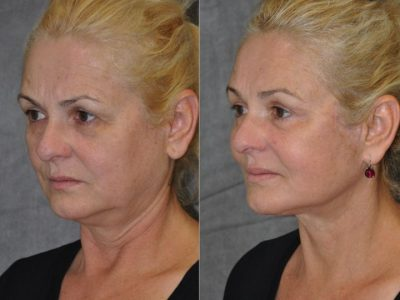 AuraLyft, BrowLift, Eyelid Rejuvenation, Lip Augmenation – Left Side