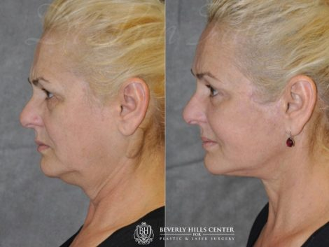AuraLyft, BrowLift, Eyelid Rejuvenation, Lip Augmenation – Left Side