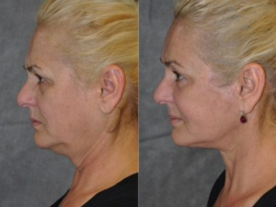 AuraLyft, BrowLift, Eyelid Rejuvenation, Lip Augmenation - Left Side