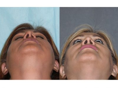 Revision 3rd Rhinoplasty