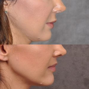Modified upper lip lift - Right Side