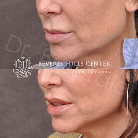 Lips - Before & Afters - Beverly Hills Center