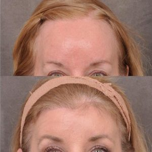 ForeheadPlasty / Hairline Lowering - Front