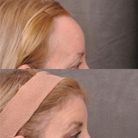 ForeheadPlasty / Hairline Lowering - Right Side