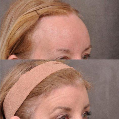 ForeheadPlasty / Hairline Lowering - Left Side