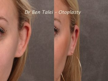 Beverly Hills Center Female Patient Before & After Otoplasty