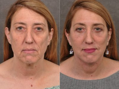 AuraLyft, Upper & Lower Eyelids, CO2 upper lip - Front