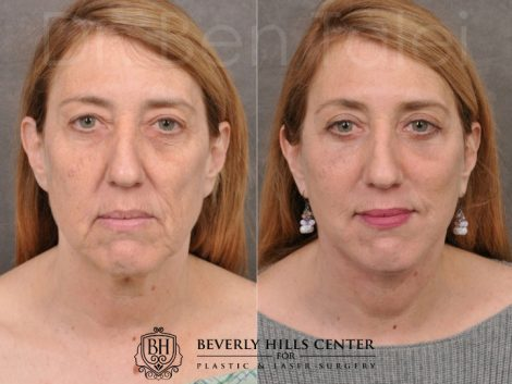 AuraLyft, Upper & Lower Eyelids, CO2 upper lip - Front