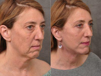 AuraLyft, Upper & Lower Eyelids, CO2 upper lip – Right Side