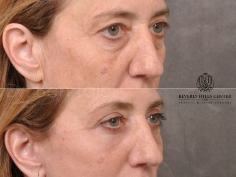 AuraLyft, Upper & Lower Eyelids, CO2 upper lip – Right Side
