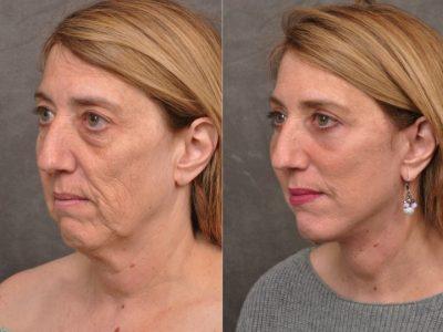 AuraLyft, Upper & Lower Eyelids, CO2 upper lip – Left Side